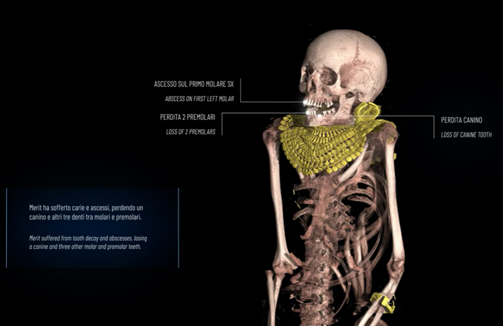 mummia di Merit